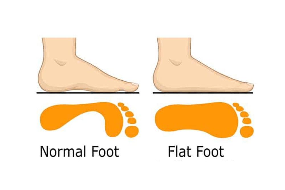 Take care of your Flat Feet with Reflexology